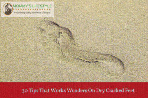Dry Cracked Feet – 30 Ways to Get Rid of it Forever